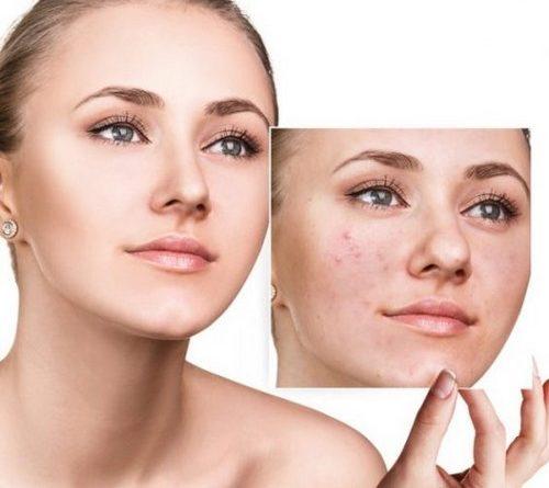 Les bienfaits de l'acide mandéliquepour la peau